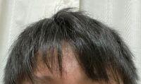 高校生なのですが、最近髪のベタつき脂?が気になります。お風呂に入ってドライヤーして15分くらいしたらもうこなってます シャンプーは今まではいち髪とか使ってたんですが皮脂がそんなに落とせないと書いてあった のでオクトというシャンプーを買って使ってます。食生活も脂っこいものも余りとっていませんし、対処法はありますか?