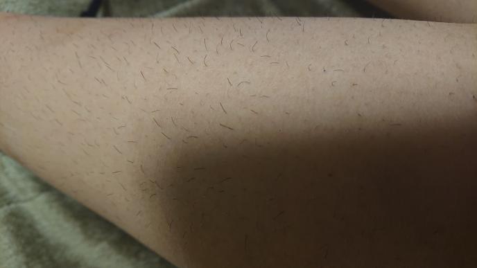 高校生です 1週間前に剃ったのですが、これは毛深いですよね しかも、色が濃くて硬いです すごくつんつんしています これは体質ですか? 直すには脱毛しかありませんか?