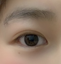 この目は蒙古襞が ありますでしょうか また瞼は厚いですか 目頭切開と瞼の脂肪取りをしようか 迷っています>_<
