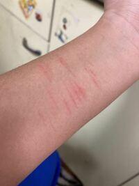 リスカかアムカか分かりませんが、その事について質問です。 写真の傷はちゃんと治りますか?  そこまで深くきったわけじゃなく、まゆそり(?)みたいなものでちょっと強く引っ掻いたぐらいです。  血は出てませんが赤くなってます。  あと、親にバレない方法や、治るまでの隠し方教えてください。