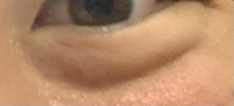 画像のように頬を上げると目の下にくぼみみたいな線が入るのですがどうしたら治りますか? 解決方法を教えてください。