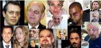 ハリウッドスターや大物政治家、経済人の左目に青あざや傷のようなものはアドレノクロムによるものですか?