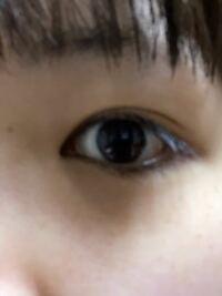 この目は埋没と目頭切開で綺麗な平行二重になれますか?