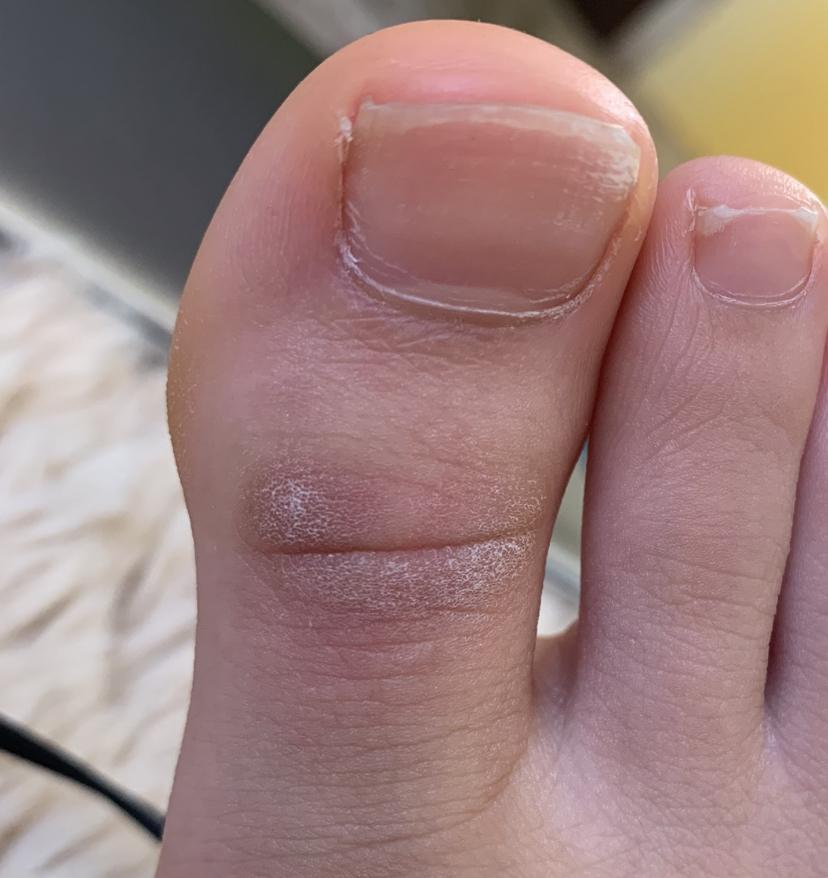 写真の、足の指の第一関節付近にできた白くカサカサした豆のような部分がとても痒いです。 これは水虫ですか?