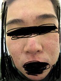 これ洗顔の石鹸あってませんか? 洗顔して化粧水塗った後ちょっとするとこうなります。これってよくないですよね? ニキビができやすく肌が生まれつき弱いのですが、 なにかいい方法ないでしょうか?オススメのやつとかあったら教えてください。 生まれつき色素が薄く地毛で茶髪で日焼けするとシミになります。