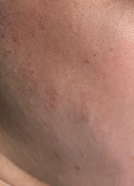 閲覧注意 閲覧注意 閲覧注意 19歳の男です。 この写真は私の顔の皮膚を写真で撮ったものです。 赤くなってたりぼこぼこしていたり、色々皮膚荒れの原因があると思うのですが、『 綺麗な肌』に近づけ...