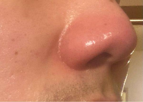 洗顔後スキンケア中、急に右の小鼻が赤く腫れて、硬くパンパンになり熱も持ちましま。痒みなどはなくすぐピークは過ぎたのですが、ジンジンします。 どういう現象で、何が原因なのでしょうか。