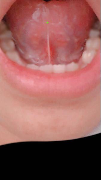 舌ピについて聞きたいことがいくつかあります。 ・麻酔などしますか? ・麻酔はどのような痛みに近いですか? ・病気や味覚障害になると聞いたんですが 本当ですか、、? ・ピアススタジオで開けようと...