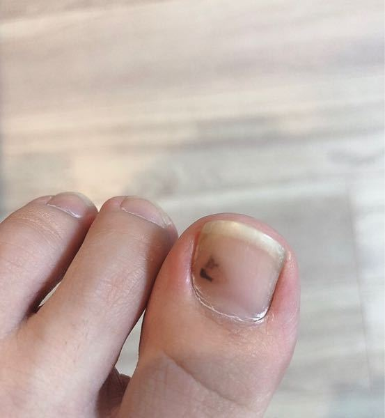 足の親指に出来た血豆なのですが これは自然には治りますか? もうしばらくこのままです。 よろしくお願いします。