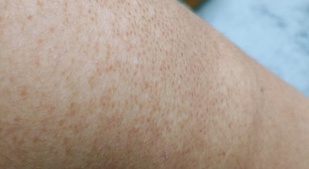 肌についてお聞きしたいことがあります。 最近になって美容とかに気をつけるようになりどうしても肩のブツブツが気になってしょうがないです。 肌荒れなのか鮫肌なのか分かりません。 解決方法を教...