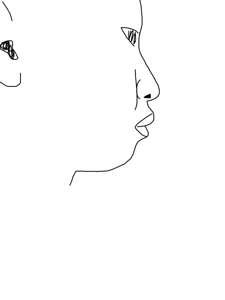 整形についてです。 私はイラストのような典型的な横顔ブスです。しかし、どこをどう治したらいいのか分かりません。 詳しい方教えて欲しいです。手軽にできるマッサージから整形まで色々な選択肢頂けるとあ...