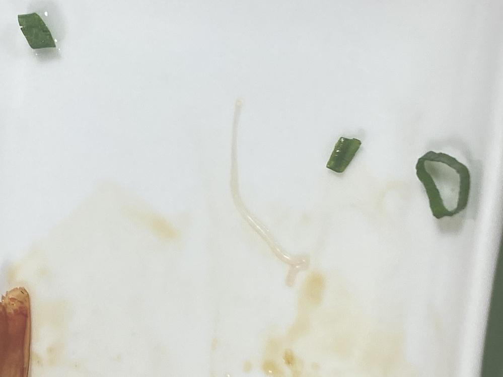 今回転寿司でヒラス食べてたら死んだアニサキスみたいなのがでてきました。 白くて細長くて見るからにアニサキスって感じでした。 そのアニサキスっぽいやつ1匹は出して残りは食べてしまったのですがお腹壊...