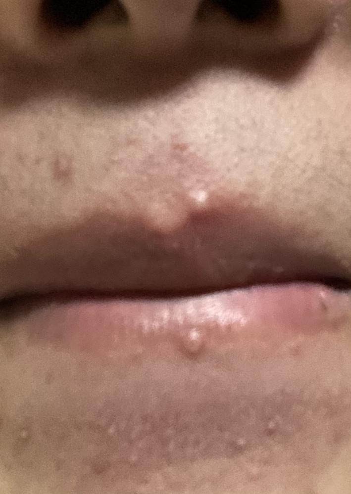 閲覧注意かもです!すいません 唇にこんなものができました。これなんでどー対処すればよいでしょうか?ヘルペスでしょうか