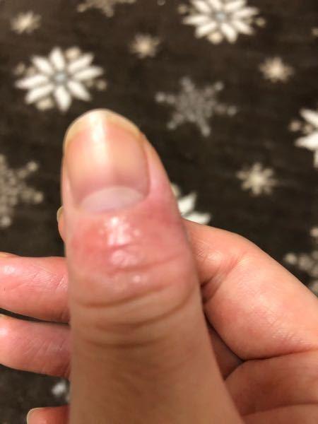 今の1番の悩みは指の乾燥からくる皮むけが治らない事です。 皆さんは悩みありますか?