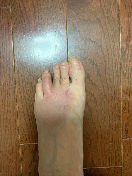 足指の治療に関する質問です。よろしくお願いします。 2日前に左足の薬指あたりをベッドの角にぶつけてました。 すぐに治ると思いましたが、腫れ広がり悪化しています。 何か対応方法、アドバイスがあれ...