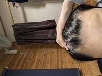 高校生です。 昔から軟毛です。また、前髪の生え際は癖毛です。「S字のように曲がります。」 これはハゲなんでしょうか? AGAとかよく聞くので心配です