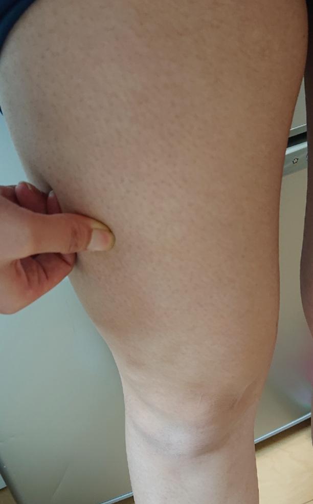 この足の太さは筋肉ですか?脂肪ですか? 一応、力を入れてつまんでます。