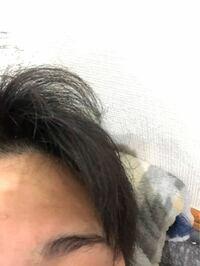 僕は髪の毛がアホ毛、くせ毛なんですけど、縮毛矯正したら治りますか?写真ではわかりづらいですが、結構ひどいです