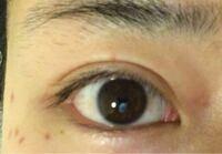 二重整形をしたいのですが、 この人の目は丸目ですか?アーモンドアイですか?