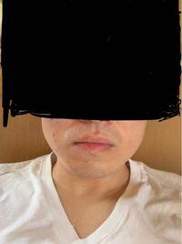 顎関節症で顎が硬く痛いです。 エラボトックスを検討しているのですがこの写真を見てエラが筋肉なのか効果が出るのかできる範囲だけでいいので教えてください