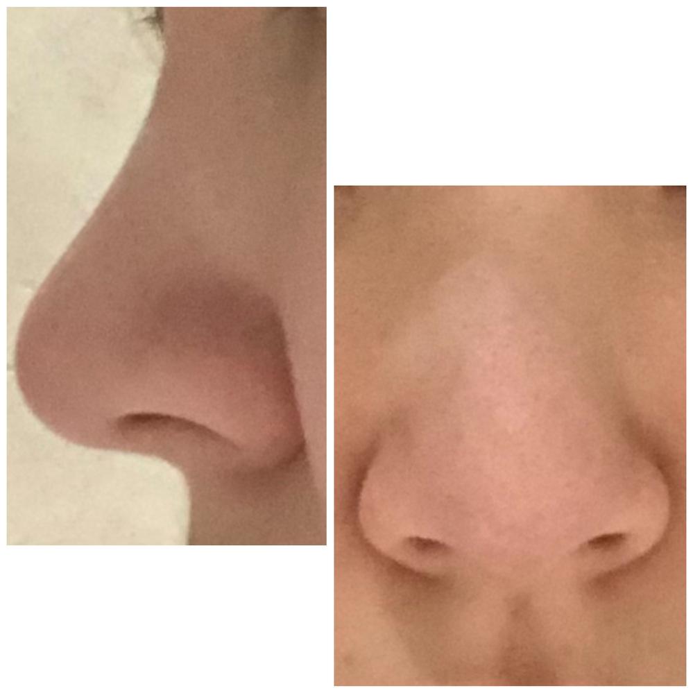 鼻筋が通ってないのが悩みです。 私は顔がかなり丸いのですが、痩せたら鼻筋できますかね?