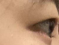 画質悪くてすみません…奥目と出目の見分けがいまいちついていないのですが、私の目は奥目ですか?出目ですか?どっちでもないですか? まぶたが分厚すぎて自分では全くわかりません。 (少なくとも出目ではないと思いますが)