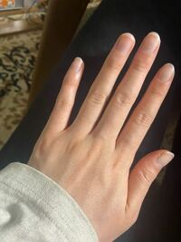 私は女子なのですが、このような手で 手のシワ、指の毛穴がコンプレックスです。  心のお優しい方、指の毛穴は脱毛すると 毛穴ごとなくなるのでしょうか。  シワもどうしたらなくなるのか、 教えていただきたいです。。