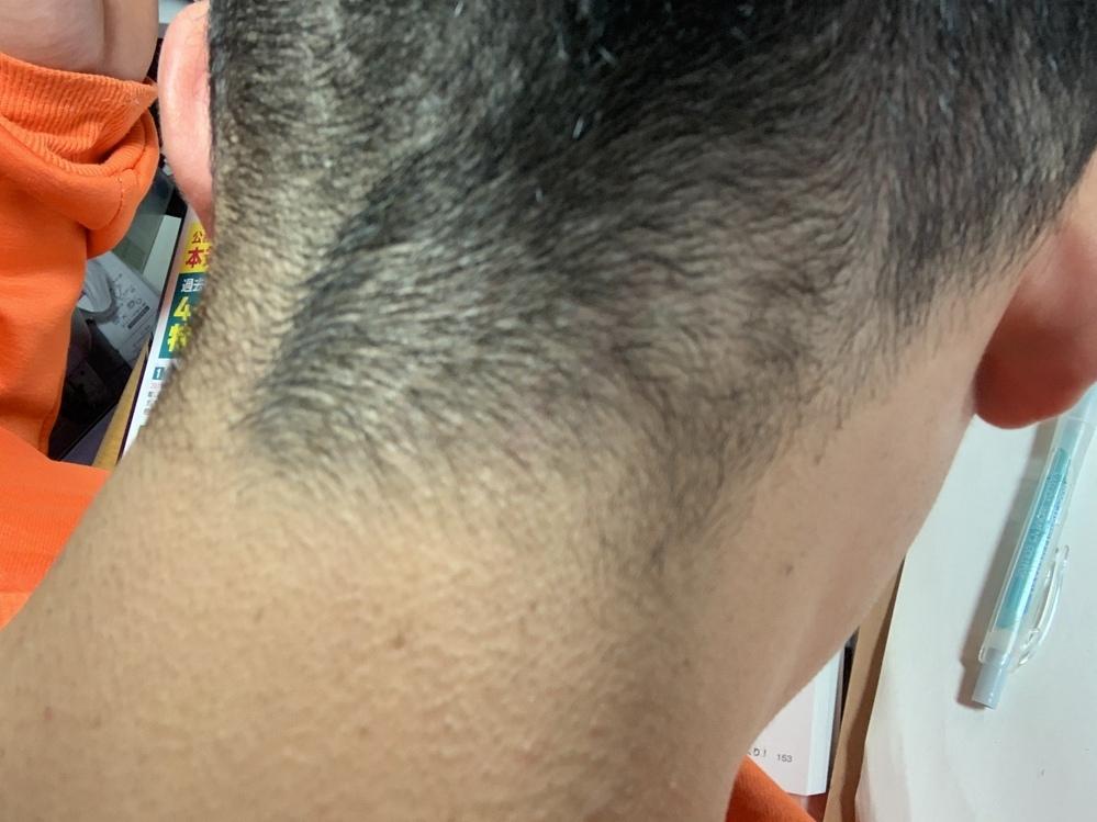 美容師、理容師の方に質問です。 僕は癖っ毛で生え際がすごい汚いのが悩みです。伸ばしたら目立たなくなるのですが、職業上刈り上げないといけません。写真のような汚さを紛らわすにはどのようにしたらよいのでしょうか。 フェードにしようかと考えているのですが、それくらい短くすると目立たなくなりますか?