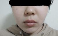 見苦しい画像ですみません。 私は鼻そのものと鼻先が短く鼻筋が皆無レベルで通っておらず、その上唇が平均より厚く、人中が長いのがコンプレックスです。 これらのコンプレックスを潰したいのですが、マッサージ等で解消することは可能ですか?やはり整形をしないと厳しいでしょうか… 笑うと鼻の横幅が余計広くなること以外は随分解消されるのですが、笑いすぎると逆効果でしょうか?