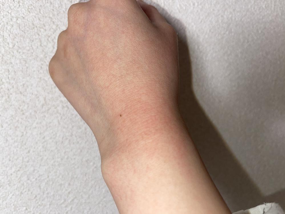 最近お風呂上がりやお湯に触れた後にこのような湿疹?がでてきます。 手で触るのは痛くないのですがお湯などに触れると少し染みる感じがします、原因はなんでしょうか?