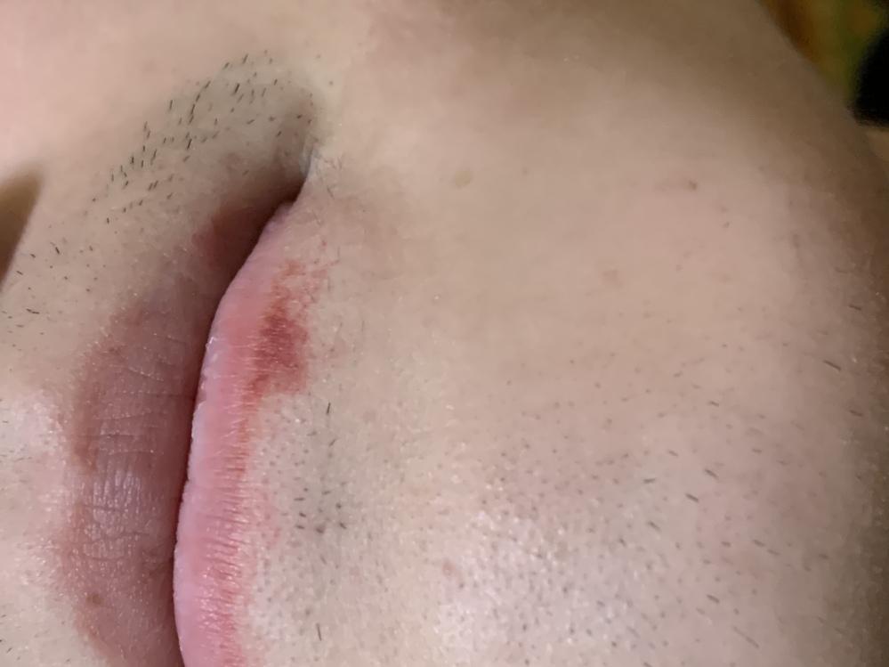この唇の下の赤いのはなんですか?たまに知らない間にできてます。