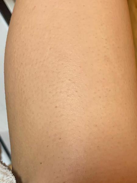 足の毛穴がひどいのが悩みです。 わたしは週一ぐらいの頻度で お風呂から出た後、ボディクリームを塗り 電気シェイバーで脱毛をしているのですが どうしても毛穴の中に潜った毛まで剃ることができません。。 医療脱毛に通えば、少しは目立たなくなりますか?