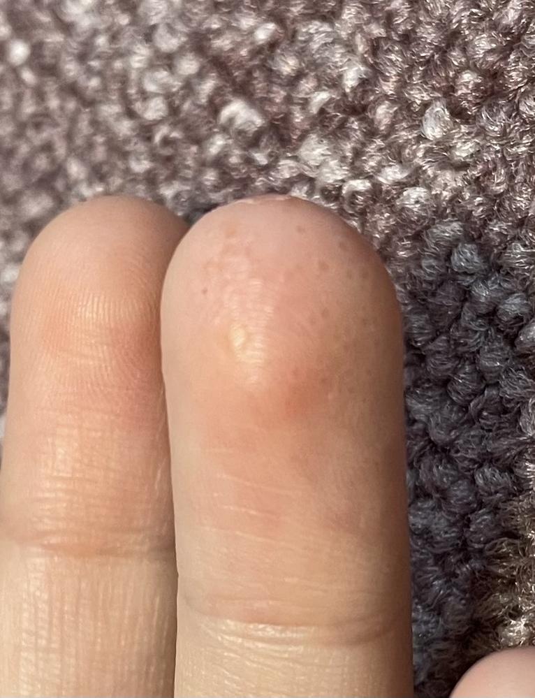 指の先にできたんですけどこれってなんですか?アトピーなのですが、アトピーの症状のひとつなのでしょうか
