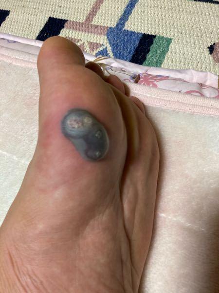 イボができて液体窒素で焼いたんですけど、3日目でこの症状です。歩けんくらい痛くて腫れもひどいん...