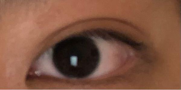 この目はなに二重ですか? また、二重幅は広いと言えますか? 蒙古壁はありますか?