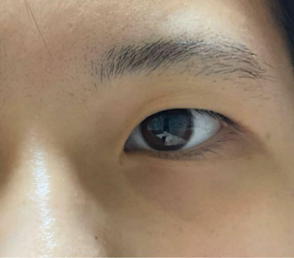 私の瞼は重いでしょうか? またこの瞼で二重にすることは可能でしょうか?