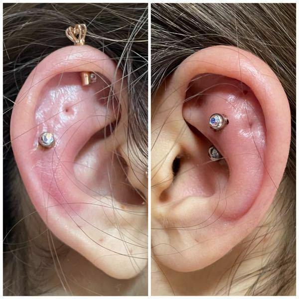 ニードルで開けた軟骨ピアスがすごく腫れています。 3日前にニードルを使って、 スナッグとアウターコンクを開けました。 ピアス自体は開けたことがあるので 開けてしばらくしたら腫れることは分かっていましたが、 ここまで耳全体がぶっくり腫れるのは初めてで困惑しています。 (両耳とも10mmのストレートバーベルが見えなくなるくらい腫れています) 熱をもっている上、 髪が引っかかったりすると その...
