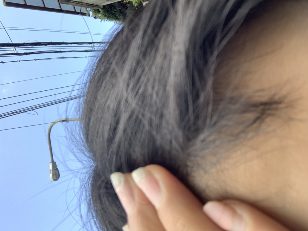 この生毛伸ばす方法教えてください。。 これ昔っからあって伸ばしたいけどこっから一向に伸びずそったりしてて。。