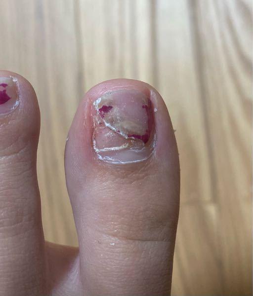 閲覧注意 爪下血腫ぽくなっていたのを放置していたら黄色くなっていて隙間ができていました。小型のハサミで浮いている爪を切ったところです。痛みは全くないのですが、これはどうするのが正解でしょうか?元...