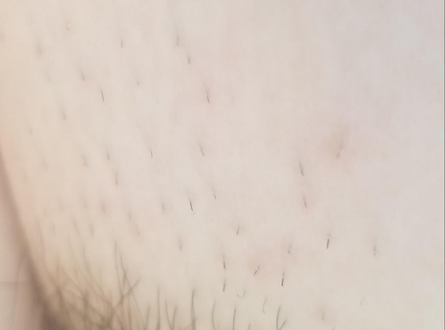アンダーヘア(写真有り)についてです。 生えかけがチクチクして赤くなってしまいました。 カミソリなので仕方ないと思ってるのですが 家庭用の脱毛器を当てる際は このぐらいの長さの時でも効果ありますか?