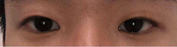 この瞼は厚いですか? また、アイプチを続ければ二重になりそうですか?