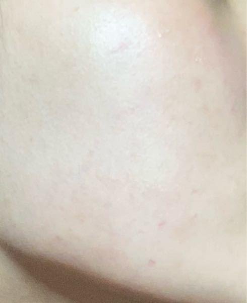 肌が薄く、このように毛細血管がところどころに浮き出ているのですが、これはレーザー治療でしか治せないのでしょうか。