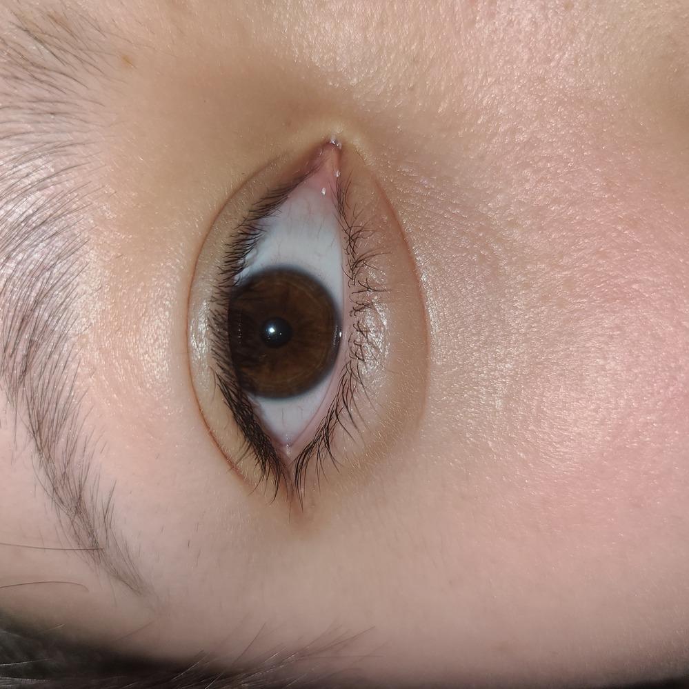 質問です。 私は生まれつき目の下に線があります。 この線があることでメイクしてなくても涙袋があるように見える事は嬉しいんですが逆にこの線があるので涙袋を大きくすることが出来ません。 私は量産...