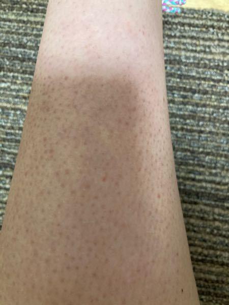 生まれつきのこのような肌は治りますか?サメ肌というやつなのでしょうか?毛穴ではありません。