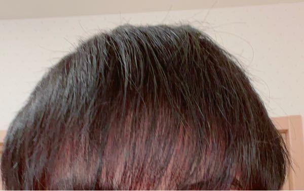 18歳です。 禿げてますか? 最近すごく悩んでます。