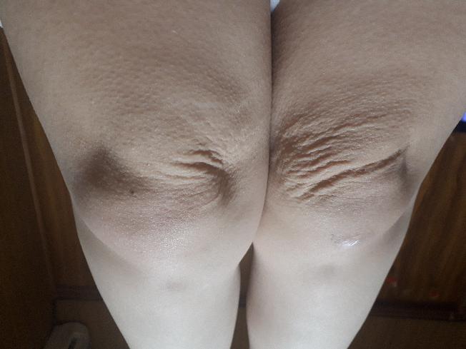 足をまっすぐすると凄いしわがよりました。 このしわをとるには、どうしたらよいでしょうか?