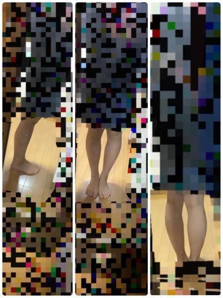 こんな感じの足なんですがどうしたらいいですか? O脚の上にふくらはぎが張っていて… 学校は制服でも私服でもどちらでもいいんですがこの足を出すのちょっと気が引けて…周りの子はとても細いので