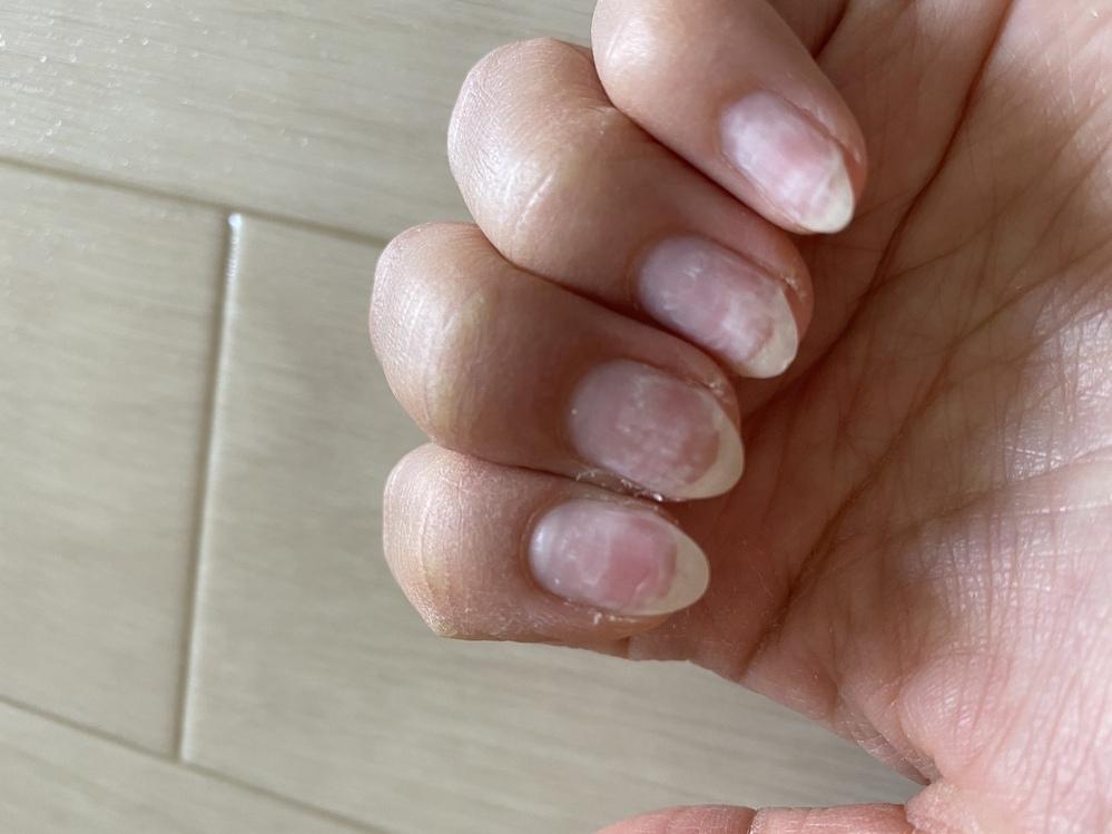 ネイルサロンでネイルをオフしてもらって帰宅したら爪の横に亀裂が入ってしまいました。 爪も白いですし、ネイルリストの方が下手なのでしょうか?