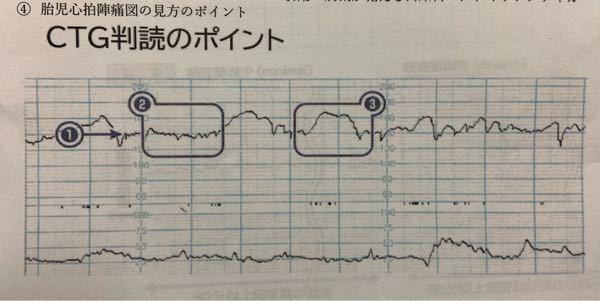 この胎児心拍数陣痛図(CTG)はどのような特徴がありますか?