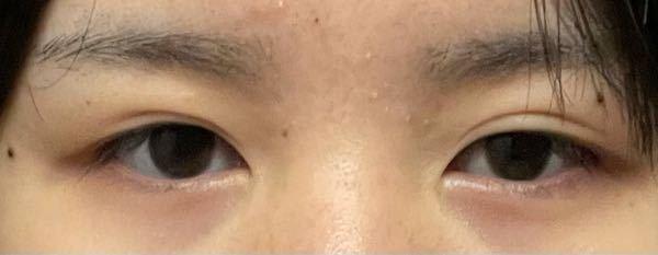 1年前に湘南でフォーエバー埋没をしたのですが最近片目だけくい込みが目立ちます。(もしくはもう片方が緩かなってきている)糸が外れない限りし直しは不可能ですよね?
